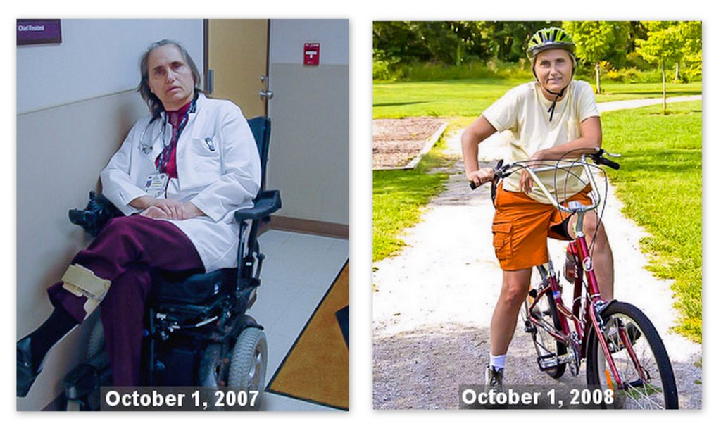 photo of Terry in wheelchair in 2007 & riding a bike in 2008