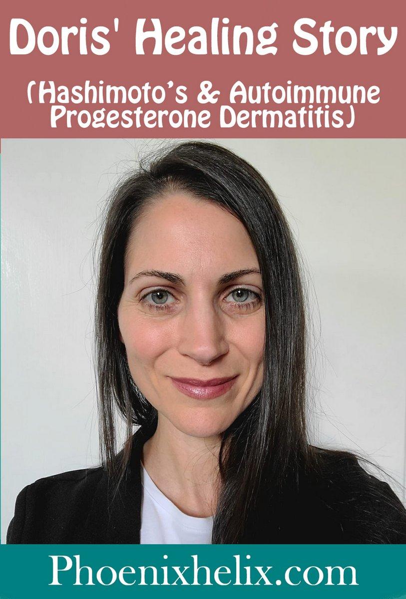 Doris' Healing Story (Hashimoto's Thyroiditis, Autoimmune Progesterone Dermatitis) | Phoenix Helix
